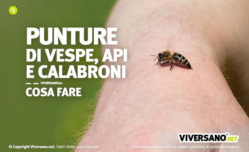Immagine di braccio con ape pronta a pungere