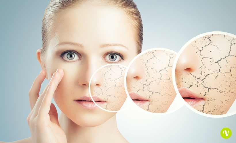 Pelle secca: rimedi e trattamenti naturali per viso e corpo