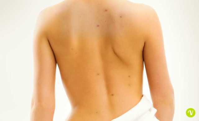 Brufoli sulla schiena: cause prevenzione