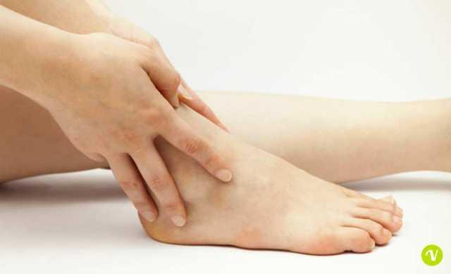 Caviglie gonfie: cause e rimedi naturali