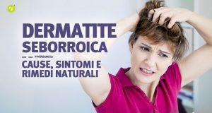 Dermatite seborroica cause sintomi e rimedi naturali