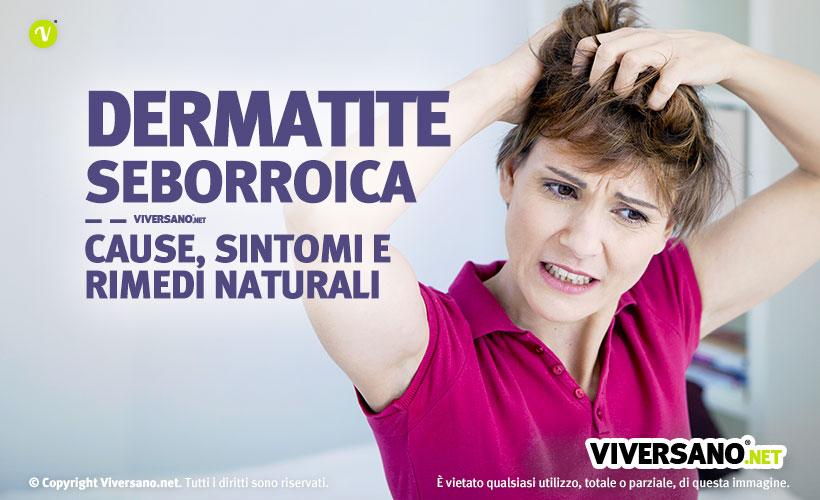 Immagine di donna con forte prurito alla testa a causa della dermatite seborroica