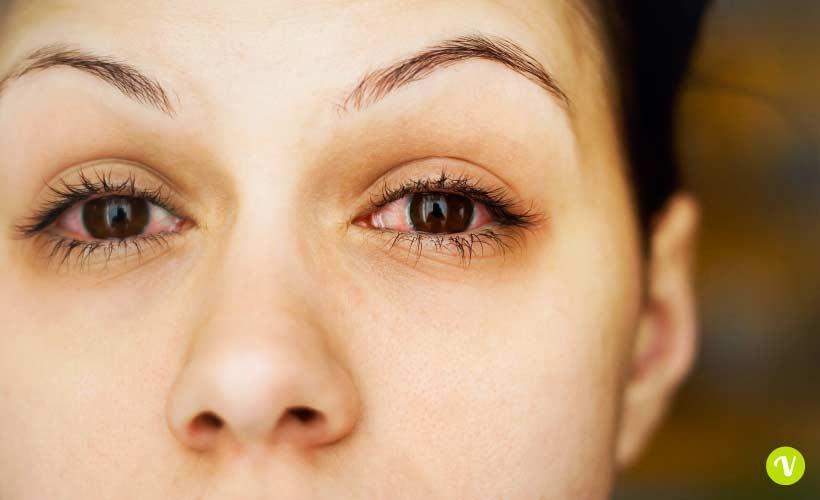 Occhi arrossati rimedi
