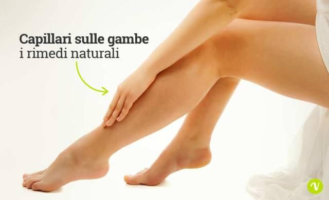 Capillari sulle gambe: i rimedi naturali