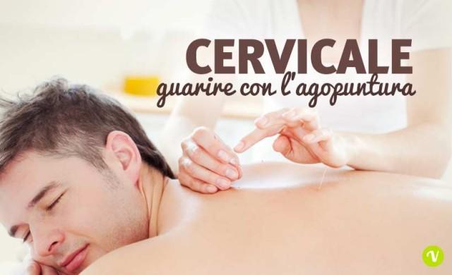 Cervicale e agopuntura