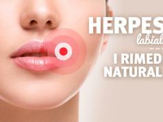 Herpes Labiale: rimedi naturali, cause e sintomi