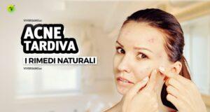 Acne tardiva: i rimedi naturali più efficaci