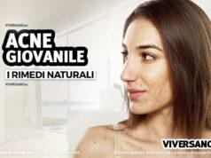 I rimedi naturali contro l'acne giovanile
