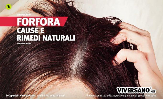 Donna con forfora sui capelli