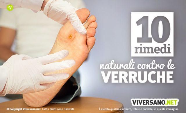 10 rimedi naturali per eliminare le verruche sui piedi