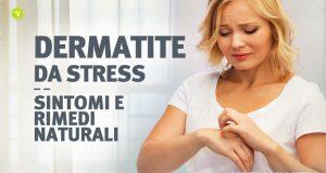 Dermatite da stress: cause sintomi e rimedi naturali