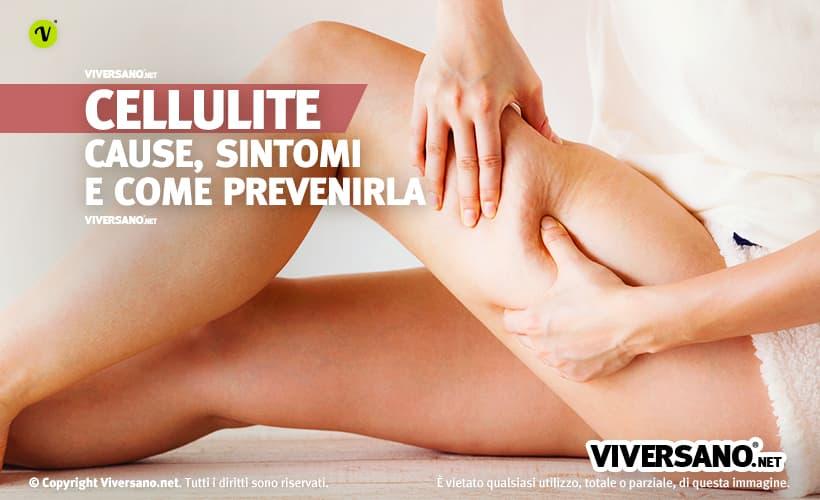 Donna con leggera cellulite alle gambe