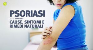Psoriasi cause sintomi e rimedi naturali