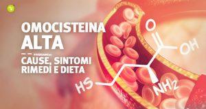 Omocisteina alta valori sintomi cause rimedi