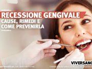 Donna con recessione gengivale dal dentista